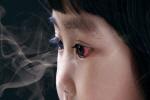 간접흡연 경고그림